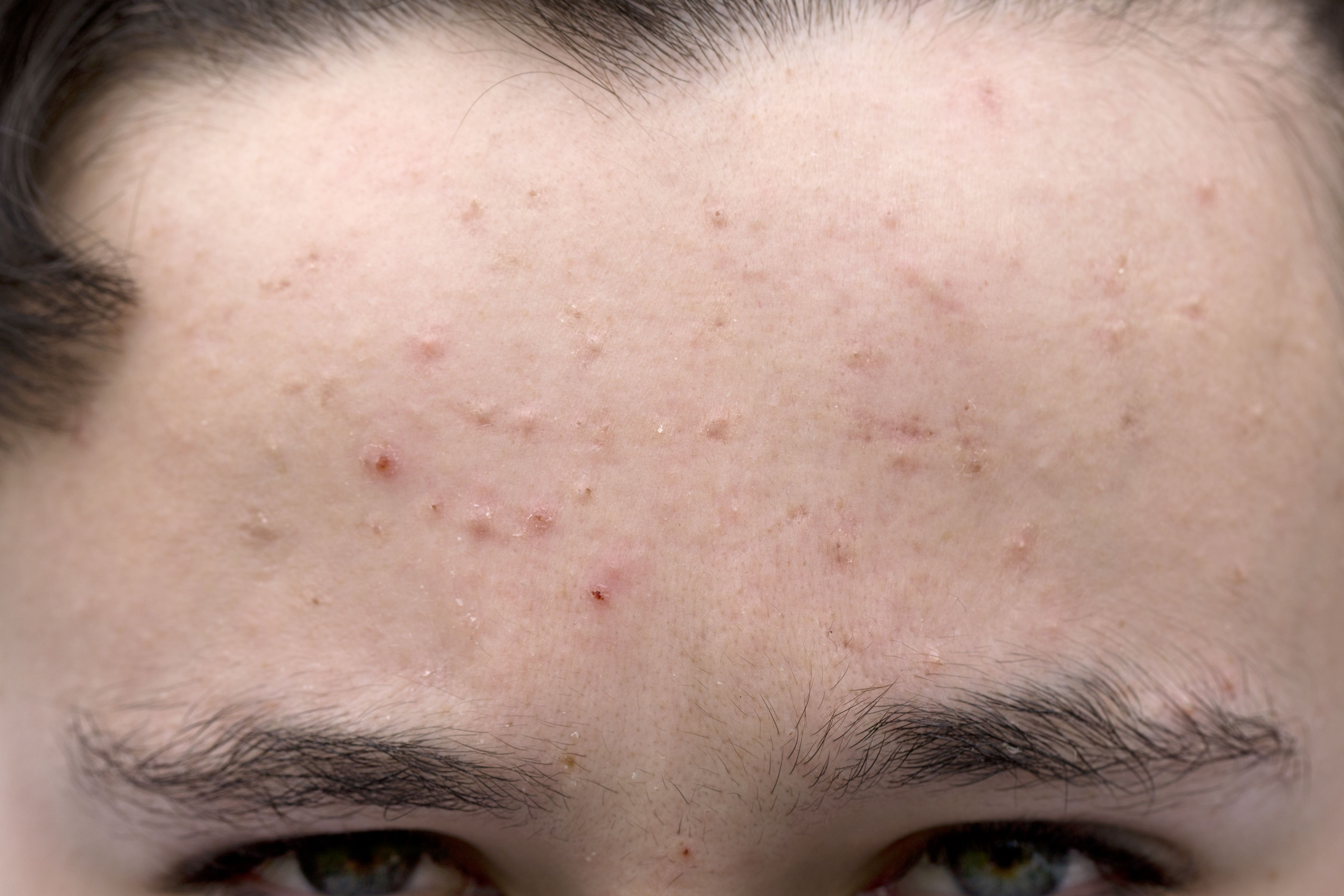 What Is Moderate Acne? How Severe Is My Acne?