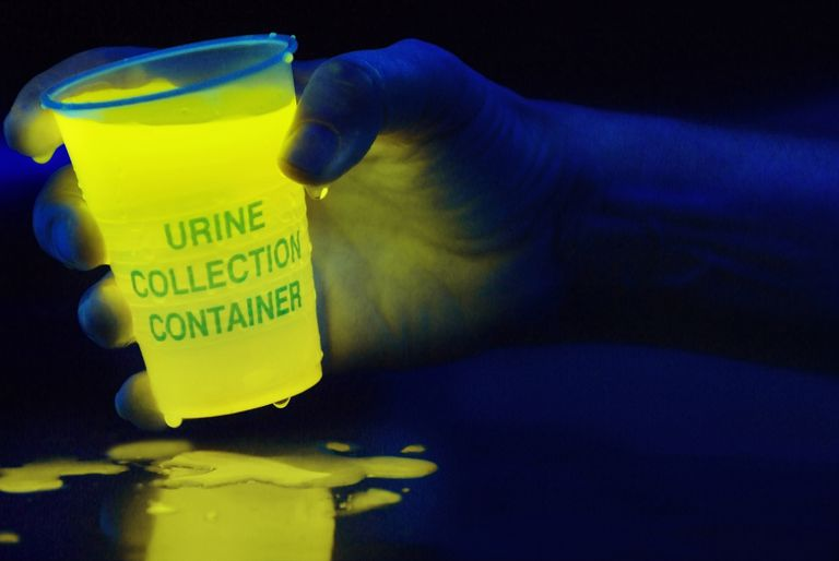 Urine glows when exposed to black or ultraviolet light.