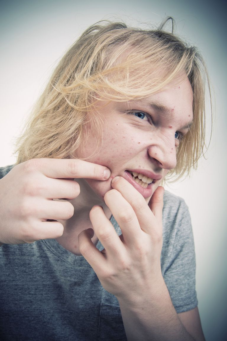 Picking-at-Pimple-AzmanL-Getty-Images.jpg