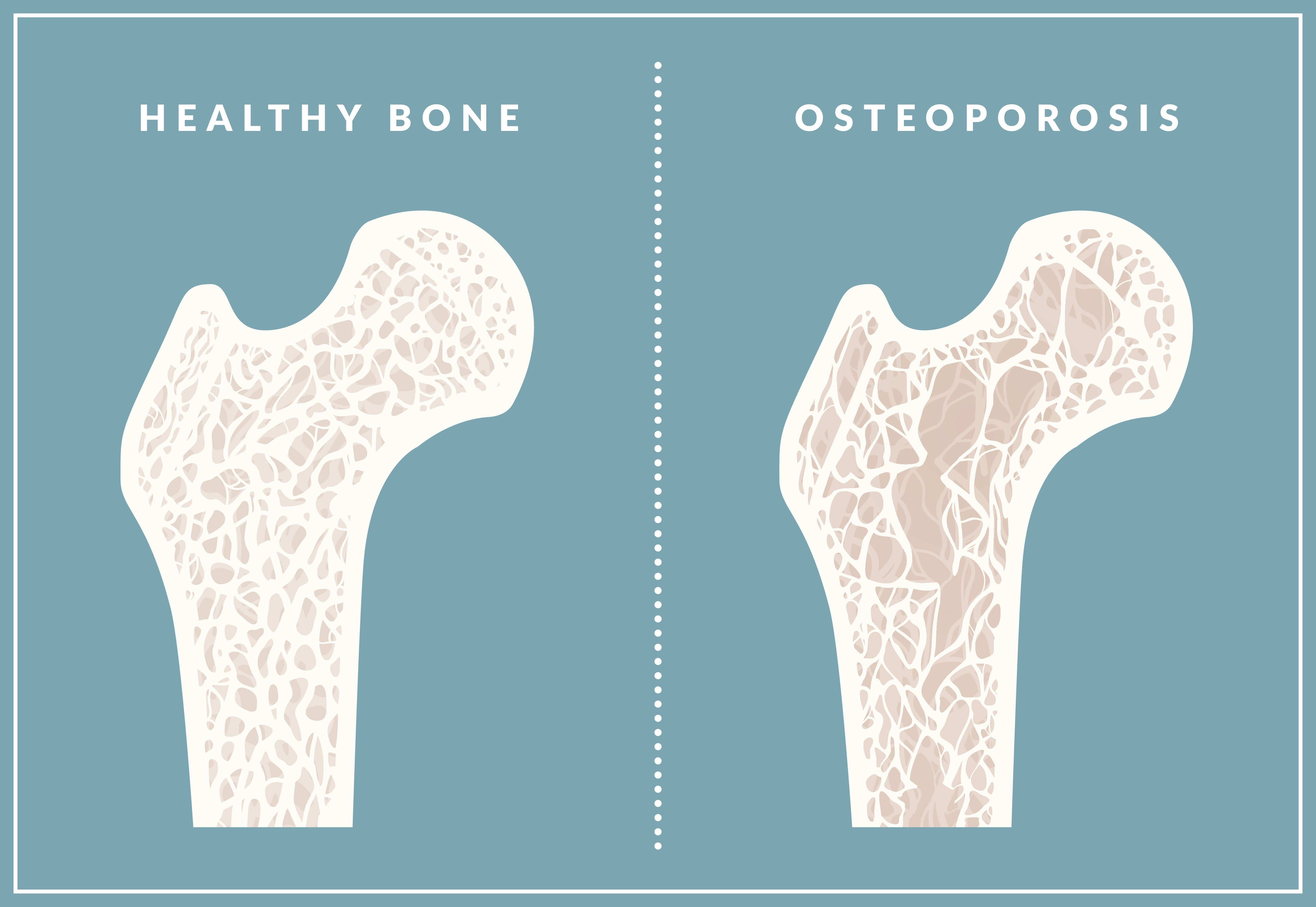 Osteoporosis Facts For Kids