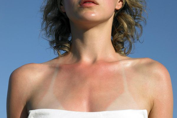 Young woman with sunburn tanlines