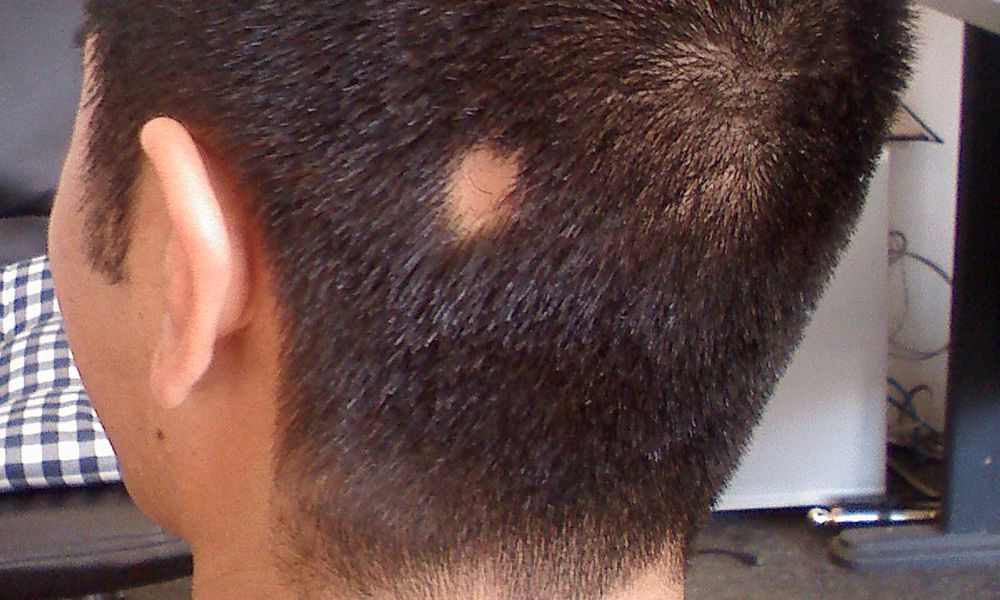 Alopeica Areata a bald spot on head or scalp. loss of hair from stress