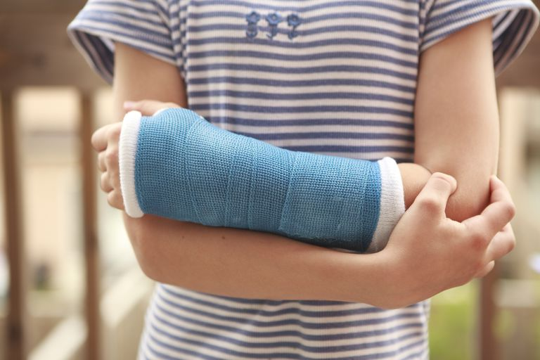 child arm with a cast