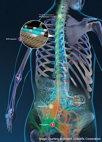 How spinal cord stimulation works to mask chronic back pain.