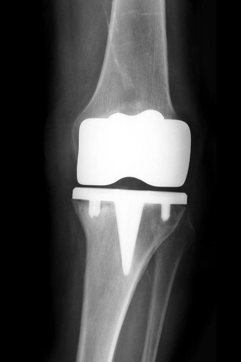 An X-ray of a prosthetic knee joint.