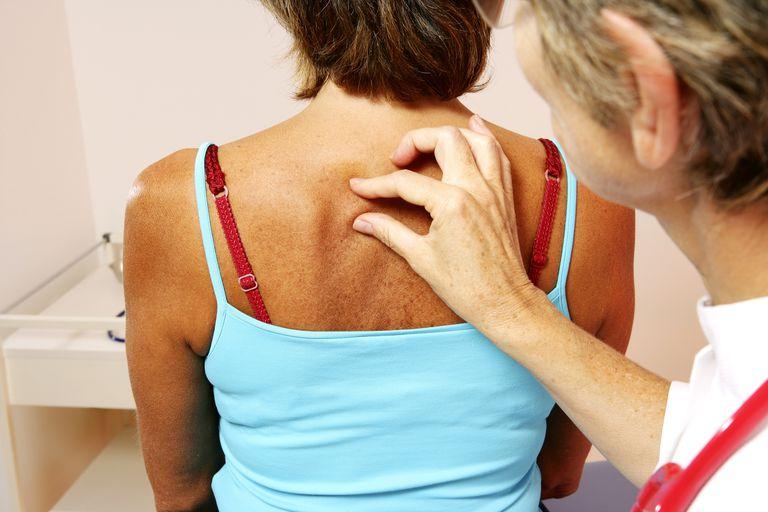 Woman Having Her Skin Examined