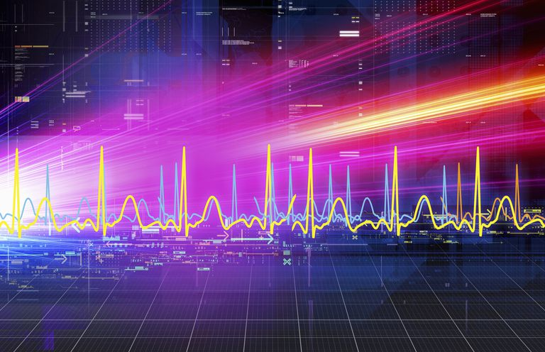 Measuring Pulse Wave Velocity to Prevent Cardiovascular Disease