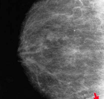 Breast Cancer Tumor on Mammogram