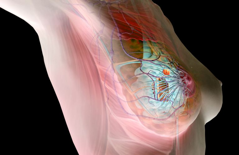 Breast cancer rendering