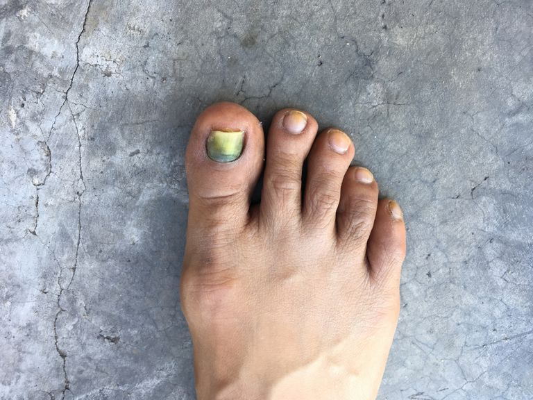 Toenail Disorders During Chemotherapy