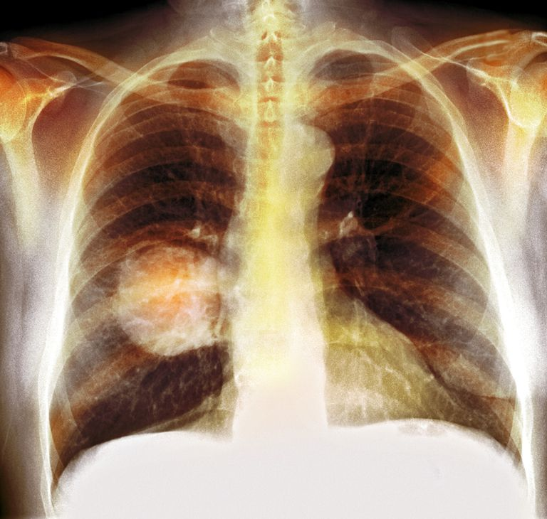 X-Ray of lung cancer