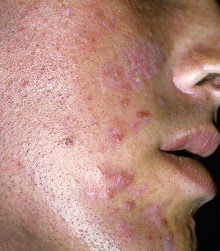 Young man with acne breakouts