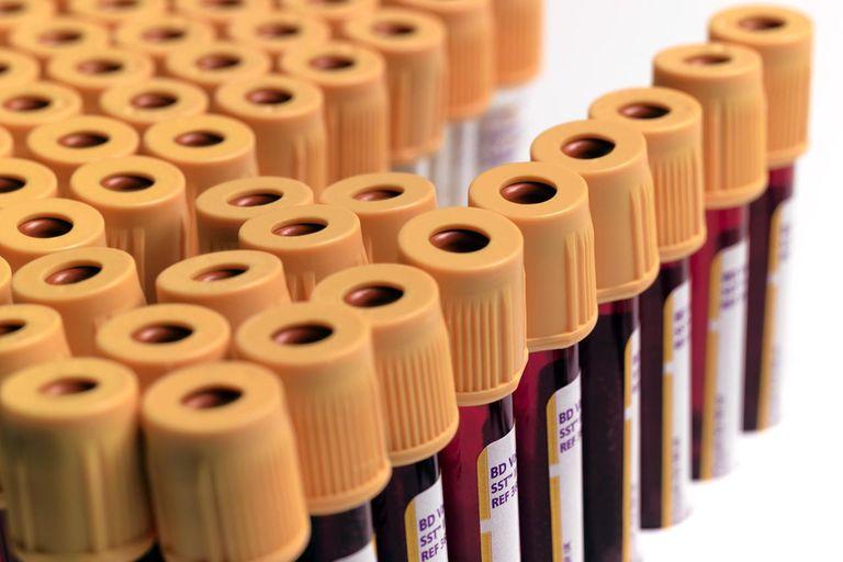 HIV blood samples