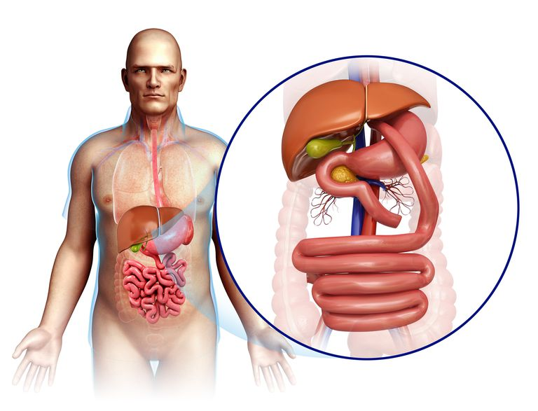 Illustration of gastric bypass.