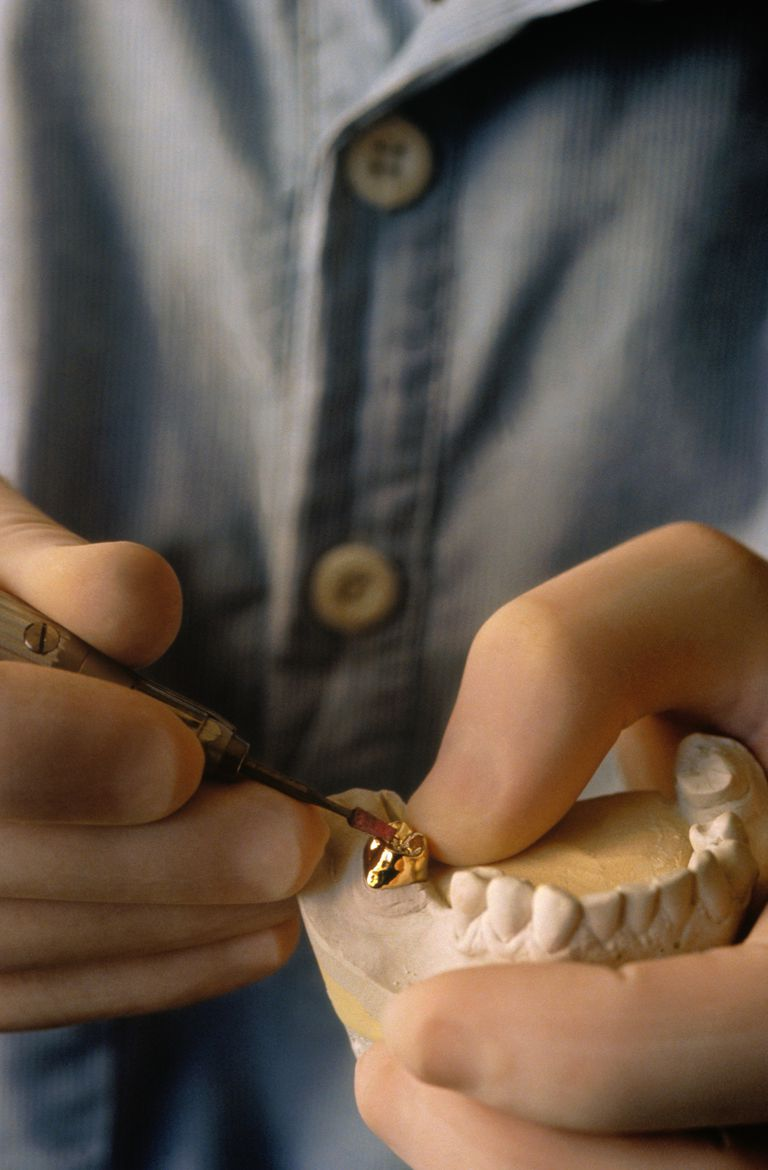 dentist polishing gold crown in mold