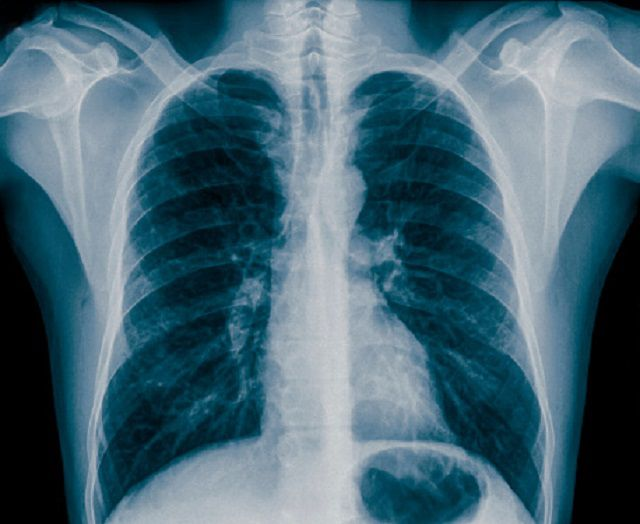 Chest X Rays What They Tell Us About Asthma Patients