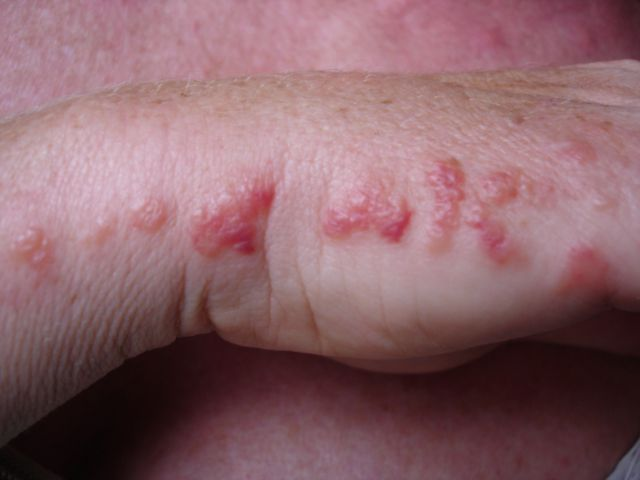 Pictures of bed bug bites