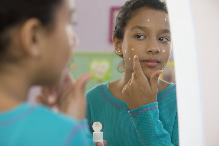 Young girl putting acne cream on her face