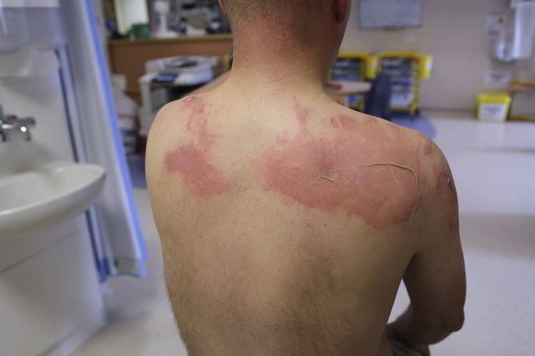 photo of a man with a red blistering skin from a side effect of radiation therapy