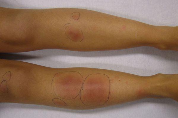 Panniculitis on the legs