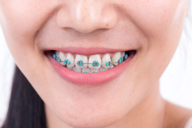 Midsection Of Smiling Woman With Braces