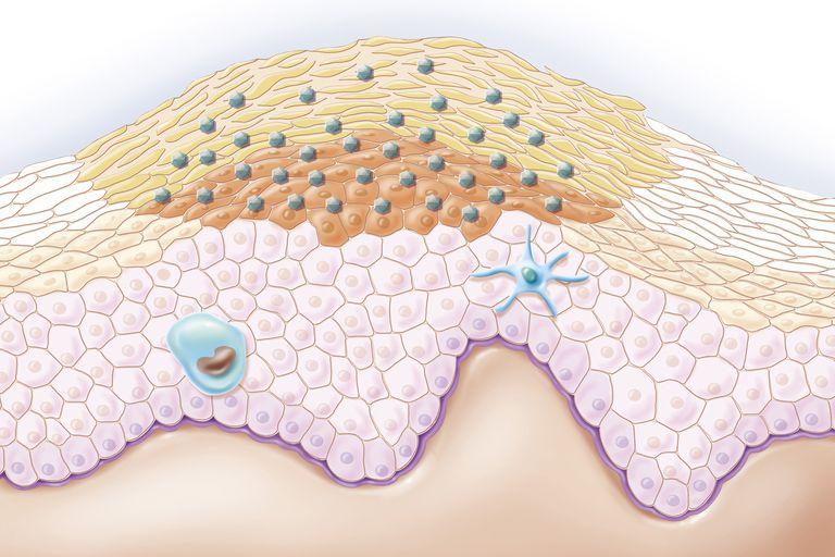 An illustration of a wart.