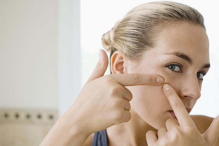 Is popping pimples bad for your skin?
