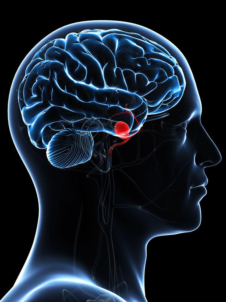 que es aneurisma cerebral
