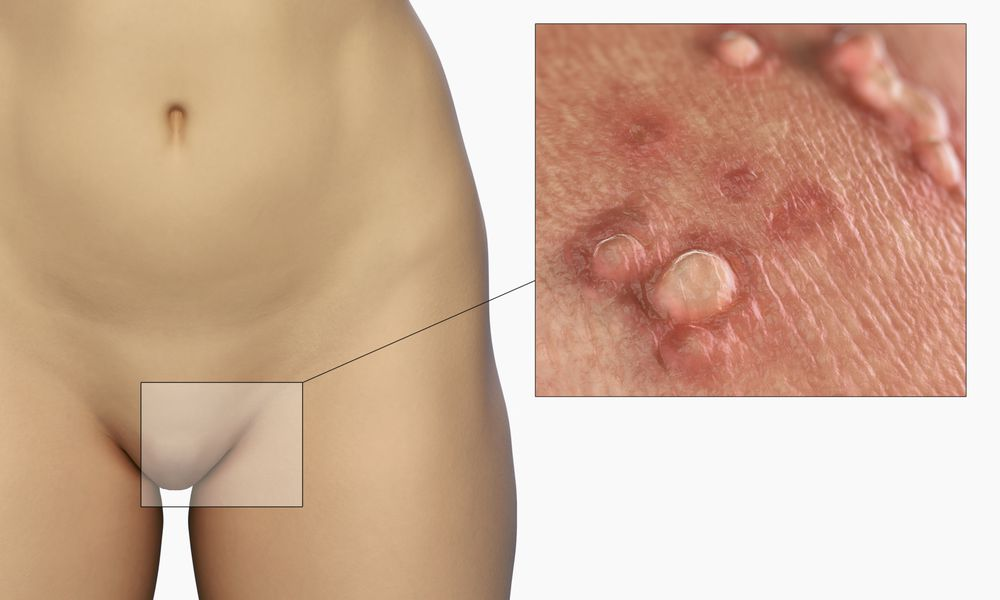 Genital warts on skin of the labia