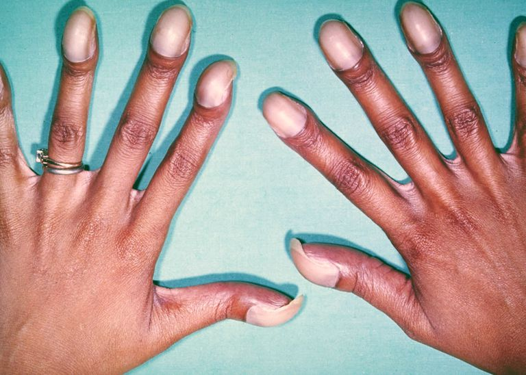 Digital clubbing with cyanotic nail beds in an otherwise healthy-appearing, asymptomatic young adult is characteristic of a congenital cardiac anomaly with right-to-left shunting. The patient shown had tetralogy of Fallot, the most common congenital cyanotic heart disease in adults.