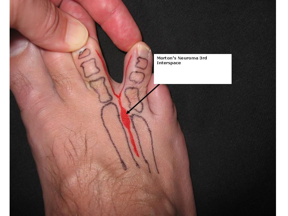 steroid injection plantar fascia rupture