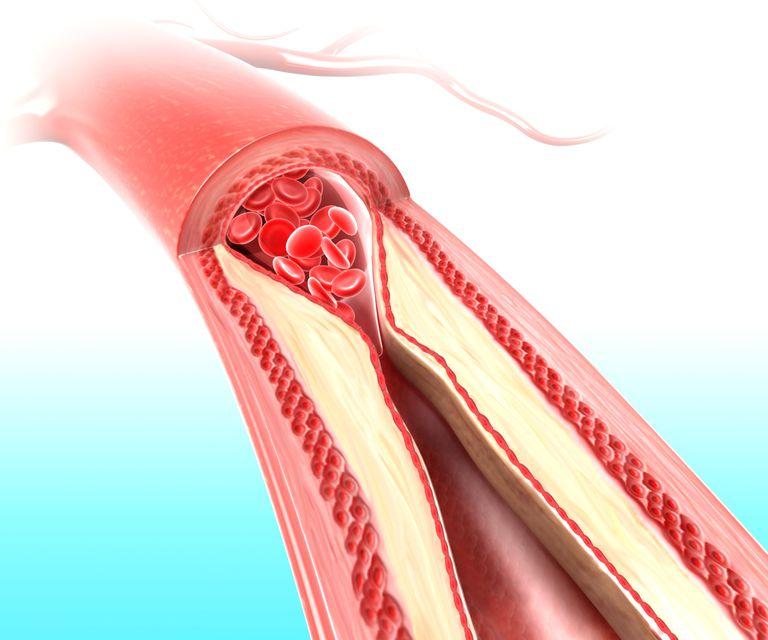 Blood clot illustration