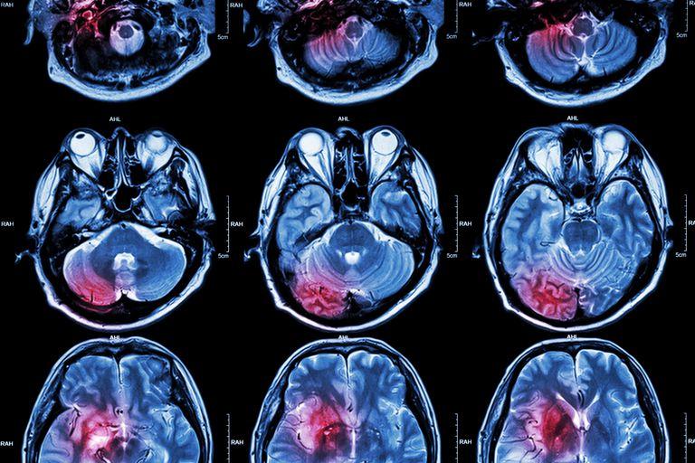Scan of brain