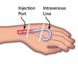 Simple IV Line in Hand