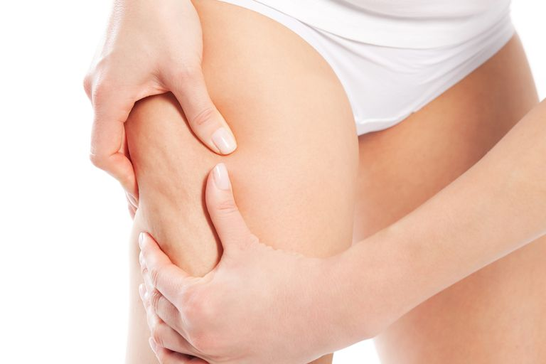 Cellulite – body and beauty