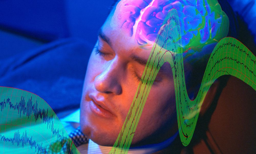 Sleep loss may affect brain function by activating astrocytes and microglial cells to clear away neuron connections