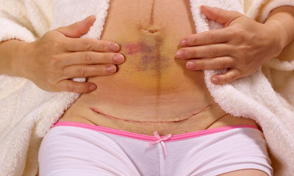 Woman showing bruising and caesarian scar
