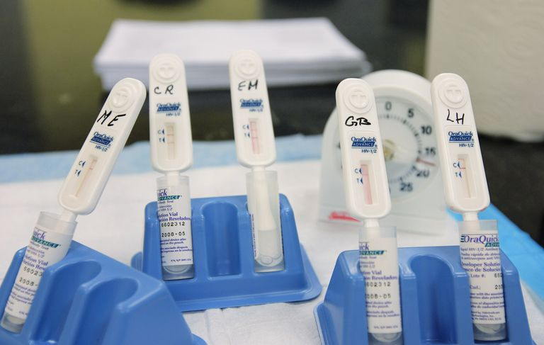 Rapid HIV tests resting in their holders