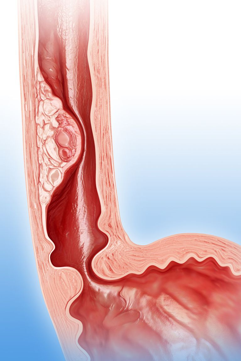 An illustration of esophageal cancer.