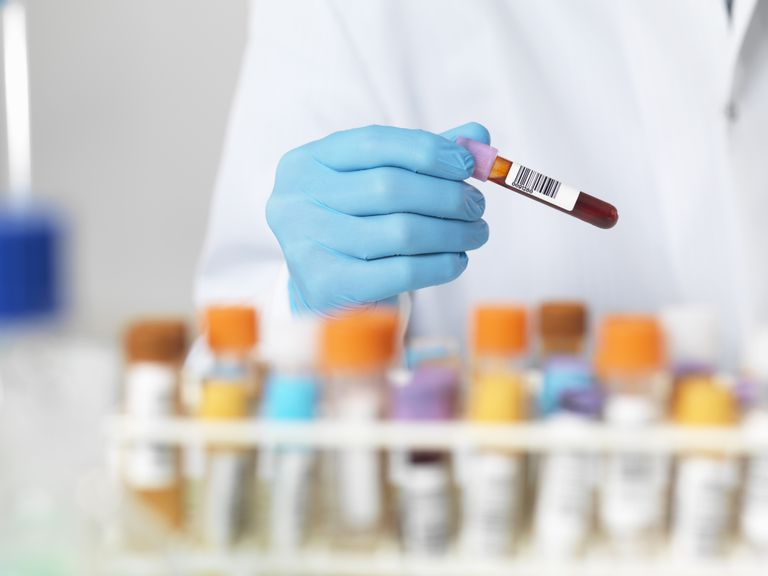 Close up of scientists hands selecting a blood sample for medical testing