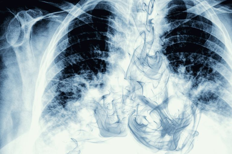 x-ray of smoke in lungs