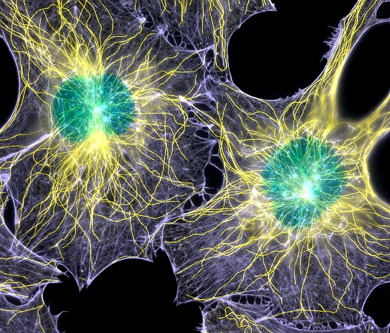 Fibroblast cells showing cytoskeleton