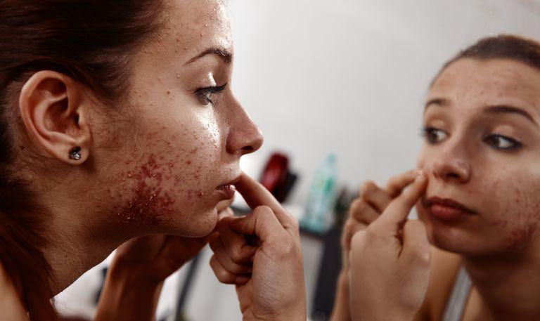 Teen examining acne