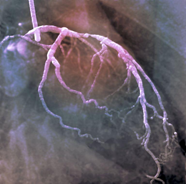 Coronary artery disease with calcium