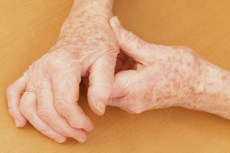 Osteoarthritic hands