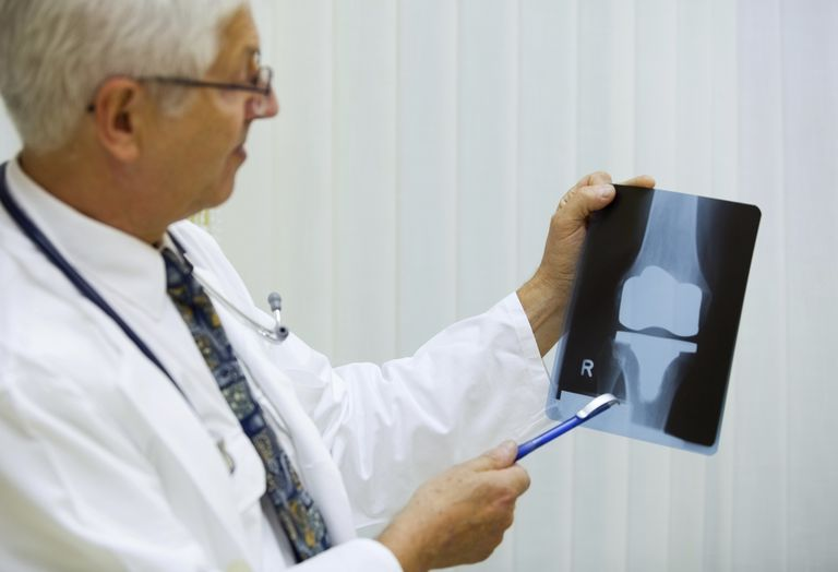 Joint Replacement Surgery - Are You Too Young?