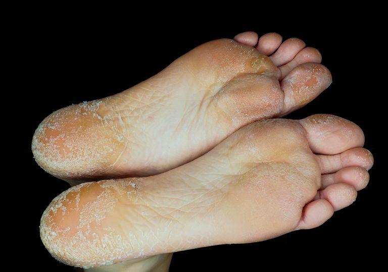 scaly skin on feet