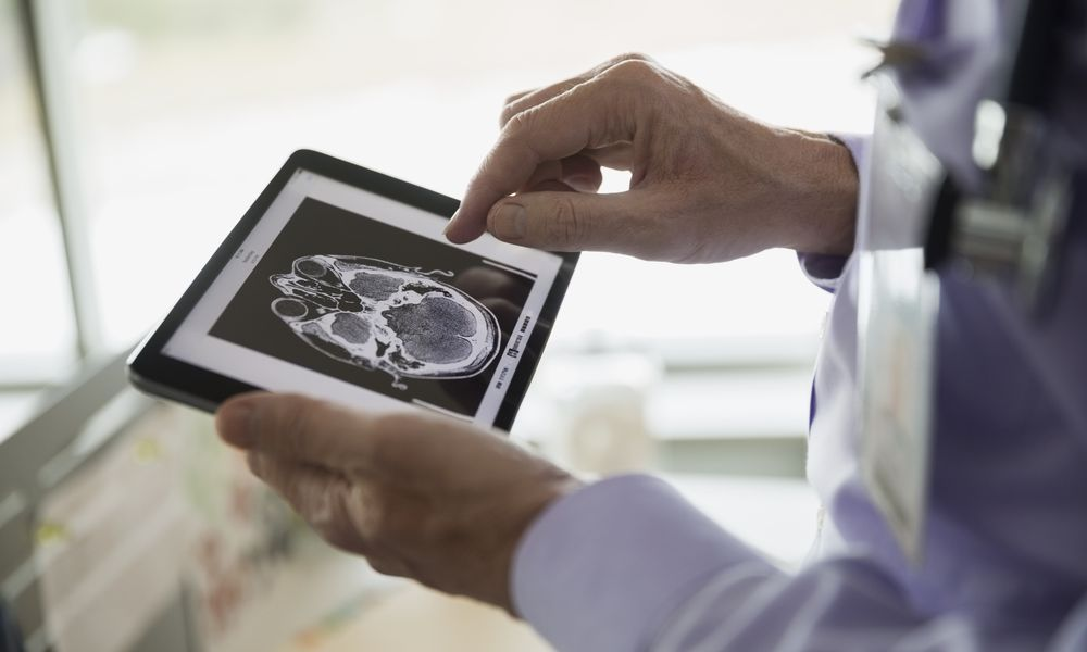 Doctor examining CT scan on digital tablet