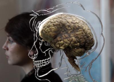 Real Human Brain Exhibit