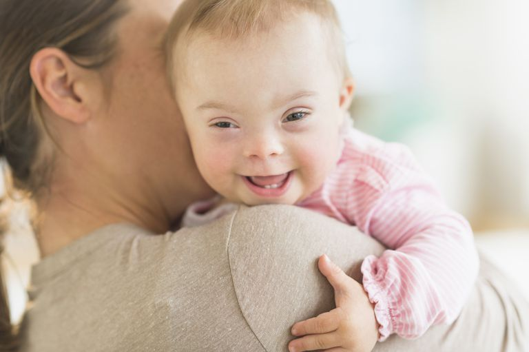 Mother holding baby with down syndrome